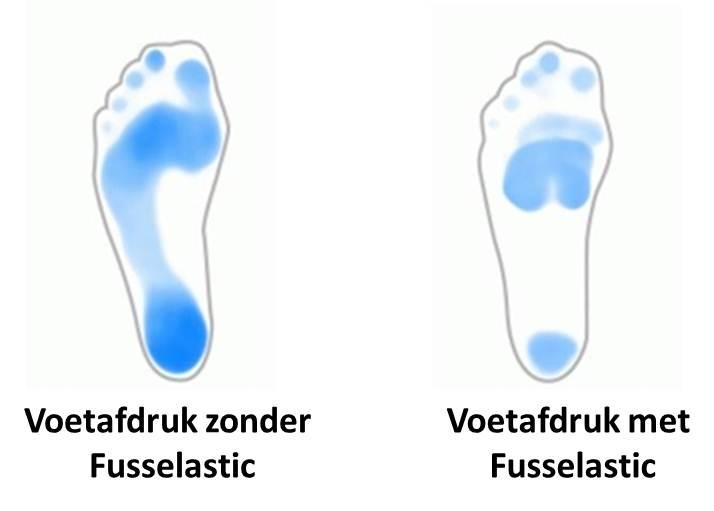 steunzolen Fusselastic - voetafdruk